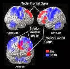 cerveau 1